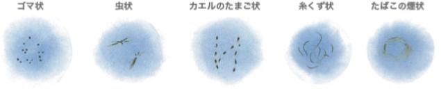 飛蚊症レーザー治療